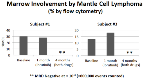 mantel cell lymphoma